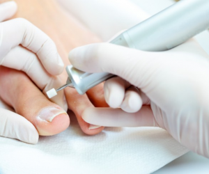 Chiropodist/Chiropody Treatment - Guiseley