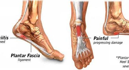 What is Plantar Fasciitis. Click on the link and please share.    fasciitis is i…
