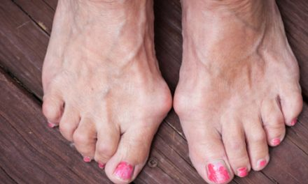 7 Ways to Ease Your Bunions Without Surgery – Health Essentials from Cleveland Clinic