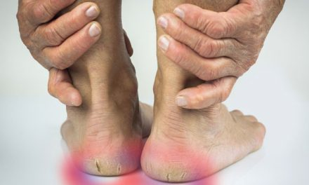 4 Simple Tips To Prevent Cracked Heels, That You Never Knew!
