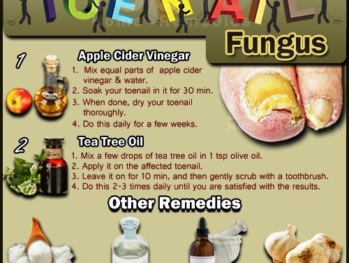 www.top10homeremedies.com