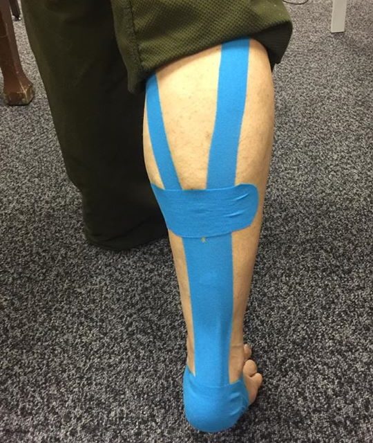 Injuries – therapeutic elastic muscle care taping. This concept is used to align…